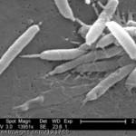 Heliko bakterija i bolovi u želucu